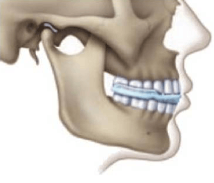 Description: skeletal illustration of cranio-facial pain