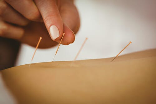 acupuncture in Bedford Stuyvesant