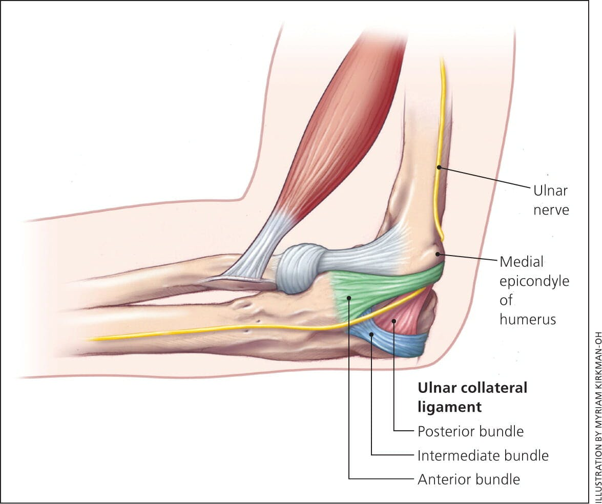 ulnar collateral ligament reconstruction for a Ulnar collateral ligament reconstruction david lintner, md this rehabilitation protocol has been developed for the patient following an ulnar collateral ligament.