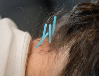 Boston Physical Therapy & Wellness | Dry Needling | Medford MA