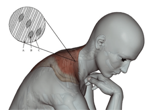Diagram of Muscle Tightness