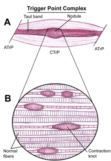 Diagram of Trigger Point Complex