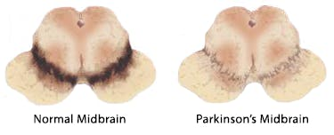 Normal Midbrain vs. Parkinson's Midbrain