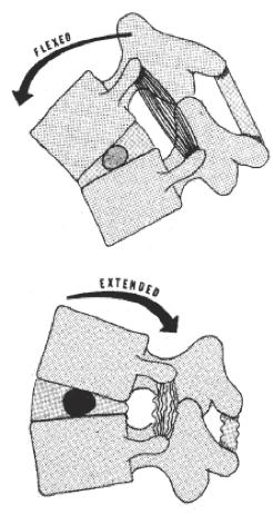 Description: lumbar flexion.gif