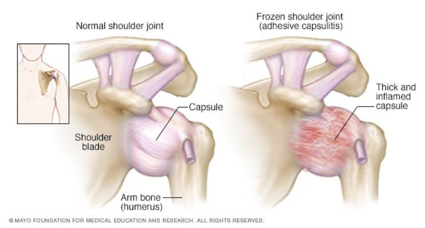 Image showing comparison between normal shoulder joint and frozen shoulder joint