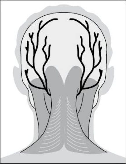 Headaches from Occipital Neuralgia