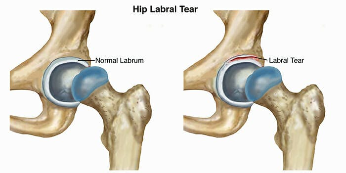 Labral Tear - Hip Pain