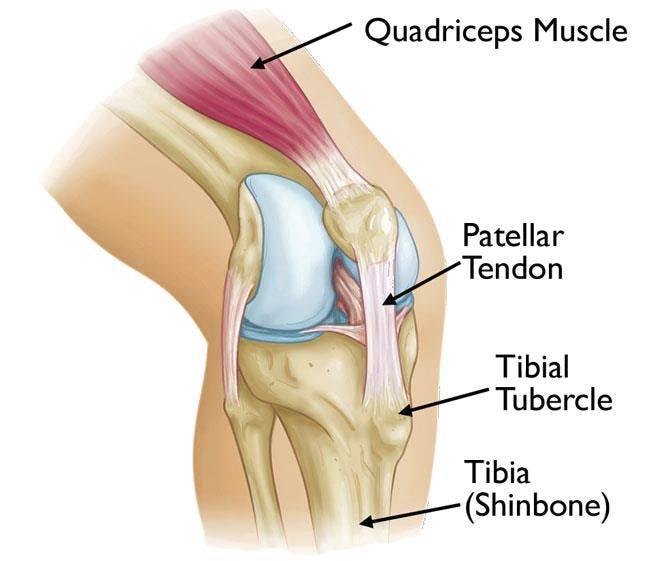 Osgood-Schlatter Knee Pain