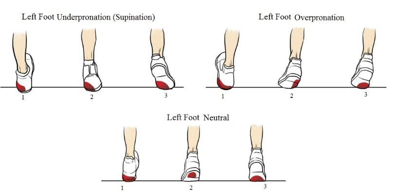 foot pronation and supination chart