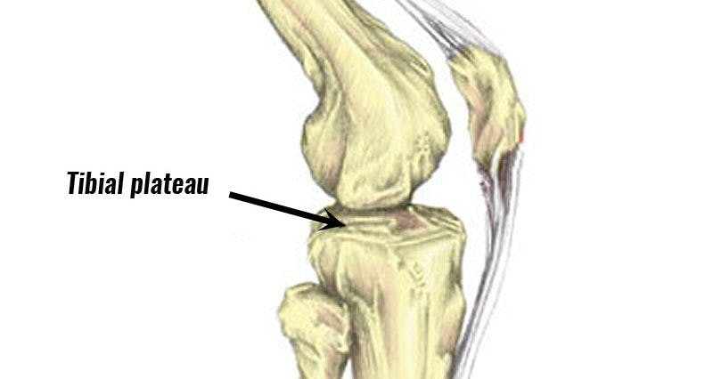 Tibiial Plateau Fracture recovery time varies. It can take up to 4 months to heal and a year to recover completely. Park Sports athletic specialist therapists can add special bodywork to an athlete's recovery.