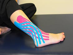 Image result for kinesio tape