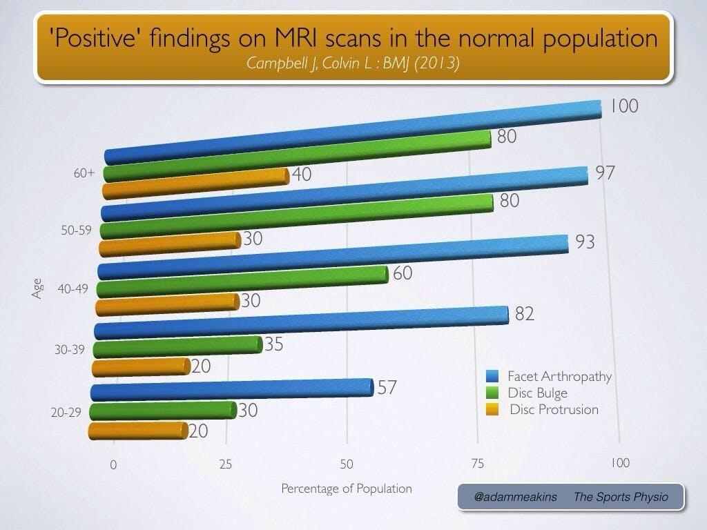MRI chart