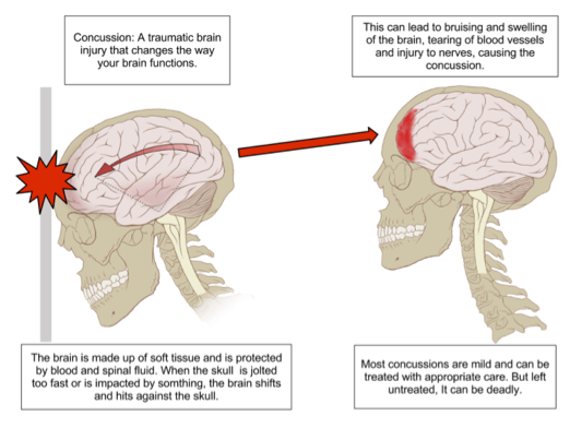 Concussion Anatomy