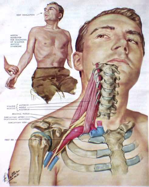Thoracic_Outlet_Syndrome-3
