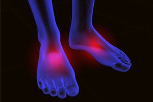 neuropathy-foot-pain-200-300