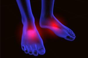 neuropathy-foot-pain-200-300