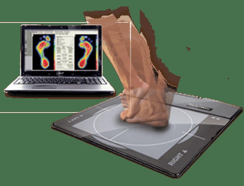 Biomechanical Gait Assessment