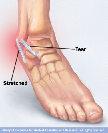 Foot/Ankle Pain - FYZICAL Therapy