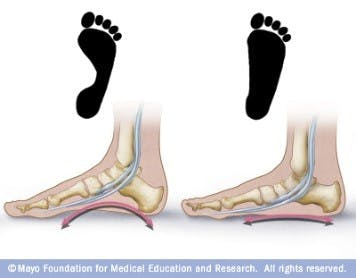 Flat feet pronation