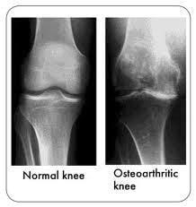 OA knee X Rays