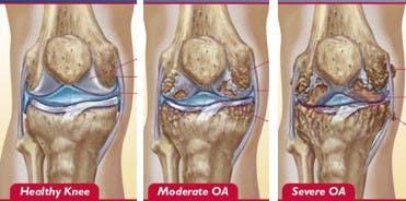 OA knee graphic