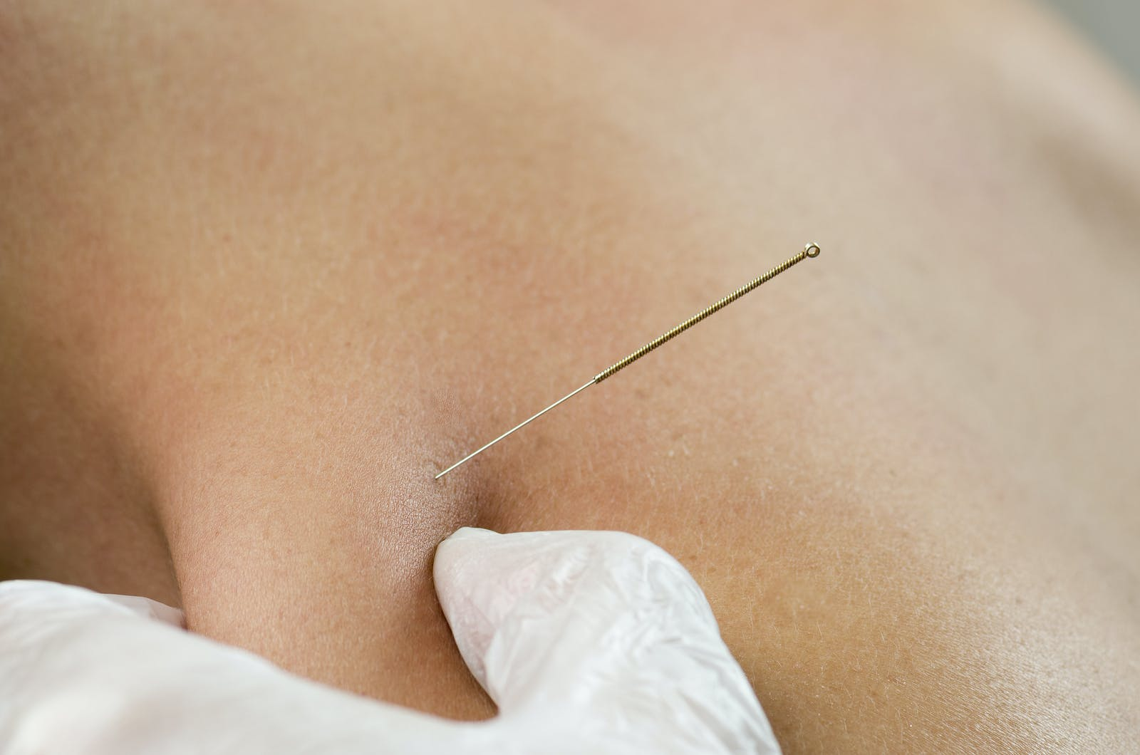 Dry Needling is also known as intramuscular stimulation (IMS) and trigger  point dry needling (TDN). It is a safe, effective and efficient treatment  used to: