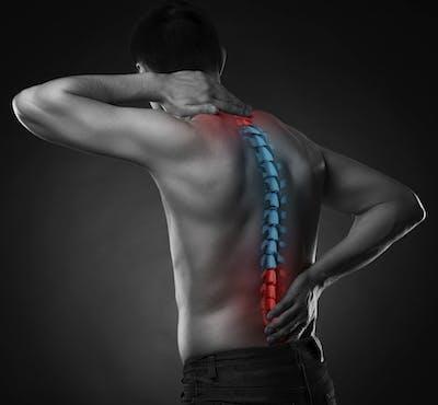 Pre-op Spine Care Program San Diego
