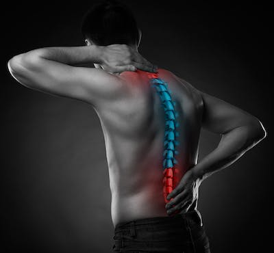 Pre-op Spine Care Program San Diego