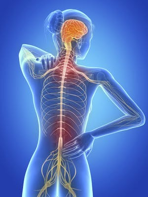 Multiple Sclerosis, Physical Therapy and You