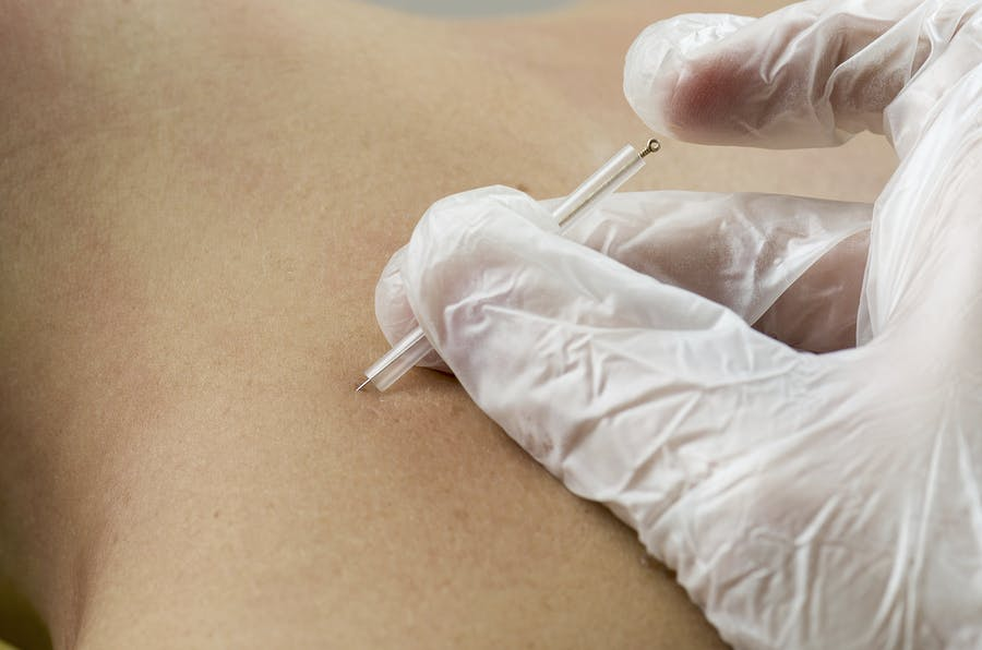Acupuncture/Dry Needling