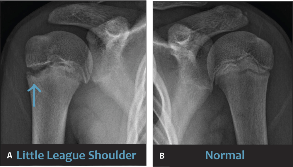 Little League shoulder x-ray