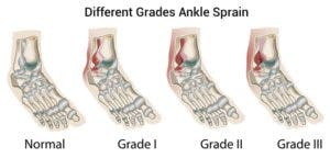 Grades of lateral ankle sprain