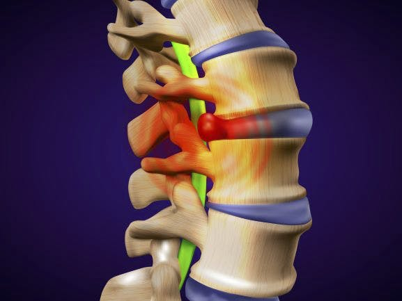Low back disc injuries