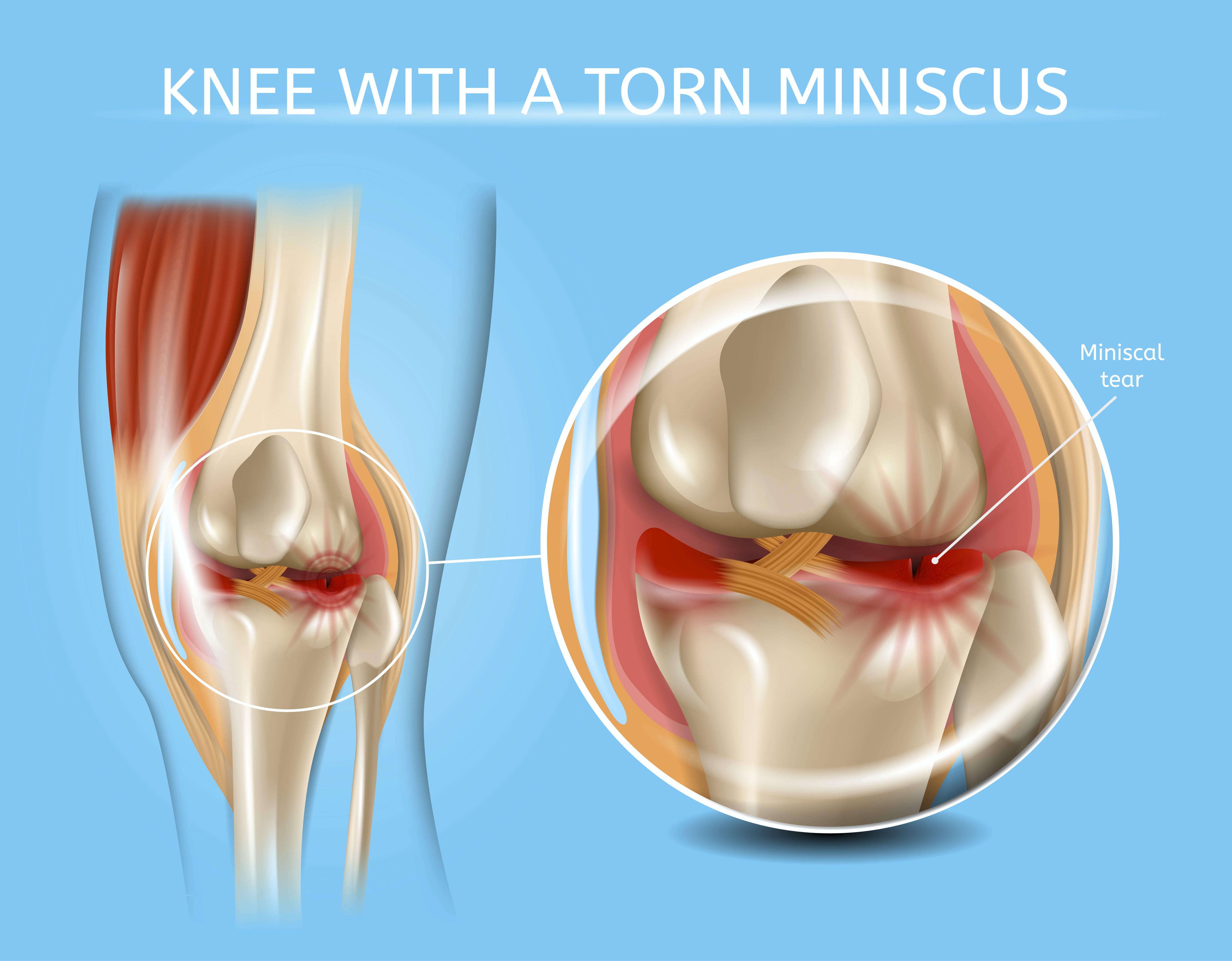 Meniscus of knee