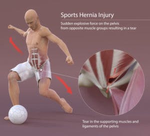 sports hernia treatment