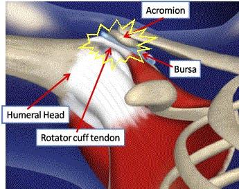 Shoulder surgery exercises