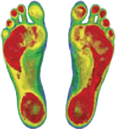Custom-made Orthotics | Junction Point Physical Therapy | Grande Prairie AB