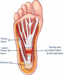 Plantar Fasciitis Treatment in West Chester OH