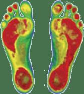 Custom-made Orthotics | Stride Physical Therapy | New York NY