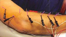 Premier Rehab Physical Therapy   Electrical Dry Needling Protocol - lateral epicondylitis