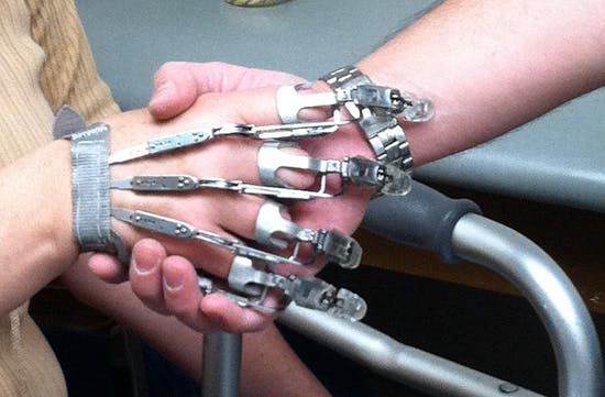 Xfingers Upper Extremity Prostheses