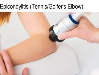 Epicondylitis (Tennis / Golfer's Elbow)