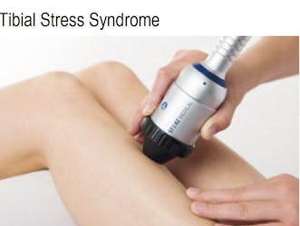 Tibia Stress Syndrome