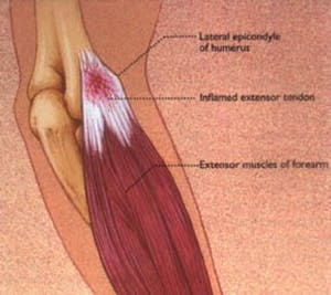 Lateral Epicondylitis (Tennis Elbow)