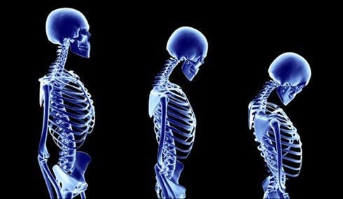 Photo showing skeletal effects of osteoporosis