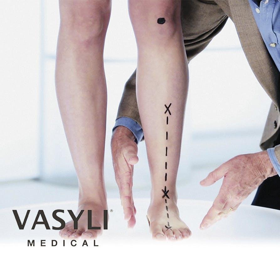 Vasyli Orthotics