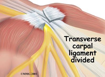 Dividing Transverse Carpal Ligament