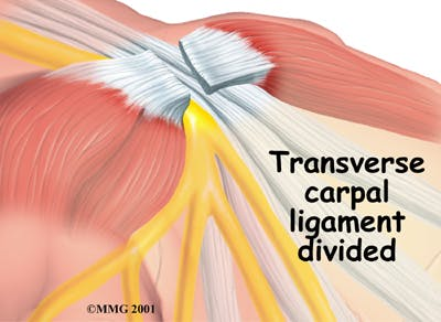 Dividing Transverse Carpal Ligament