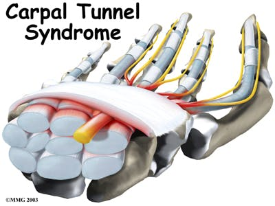 Diagram of Carpal Tunel Syndrome | CTS