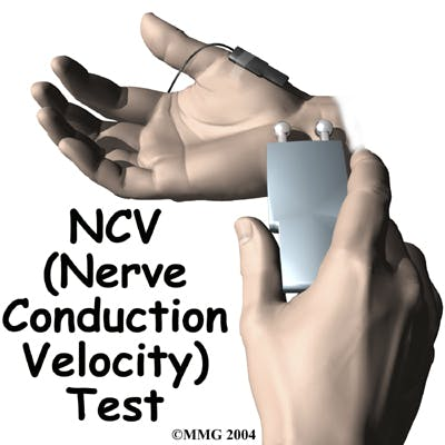 Diagram of Nerve Conduction Velocity (NCV) Test